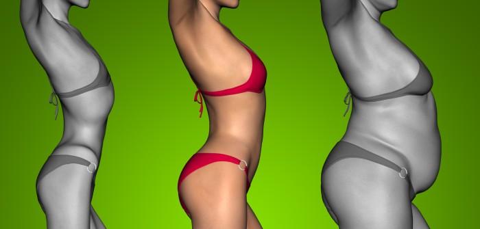 Diagnostik Fettsucht: Diagnose einer Wohlstandskrankheit