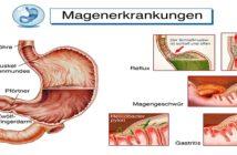 Lymphozytäre Gastritis: Hilfe für den Magen