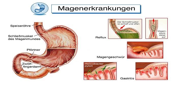 Gastritis Symptome Müdigkeit