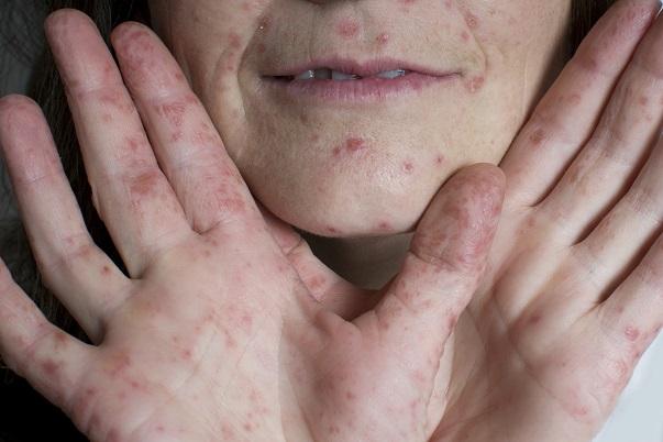 Hand Mund Fuß Krankheit: Die Arme Frau hat es aber voll erwischt.