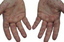 Hand-Fuß-Mund-Krankheit: Definition, Symptome, Therapie