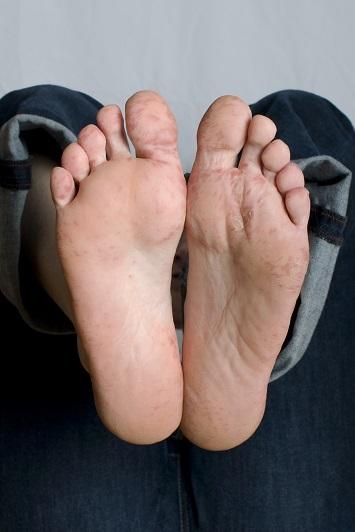 Hand-Mund-Fuß-Krankheit. So sehen die Füße aus, wenn sie erkrankt sind.