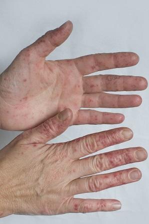 Auch Erwachsene können von dieser Hand-Fuss-Mund Krankheit betroffen sein.