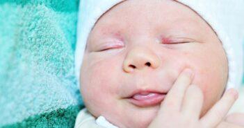 Babyakne: Ursachen und Tipps für den Umgang mit Akne bei Babys
