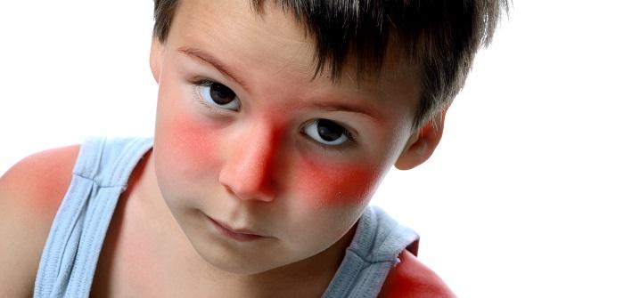 Sonnenbrand bei Kindern: Was tun?