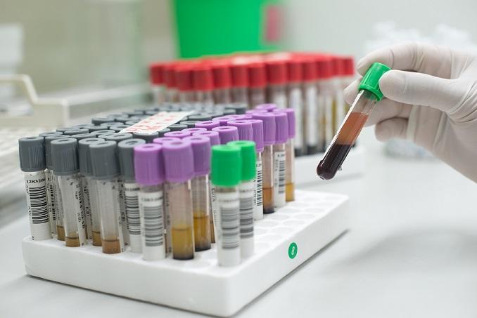 Stammzellen spenden oder einlagern?