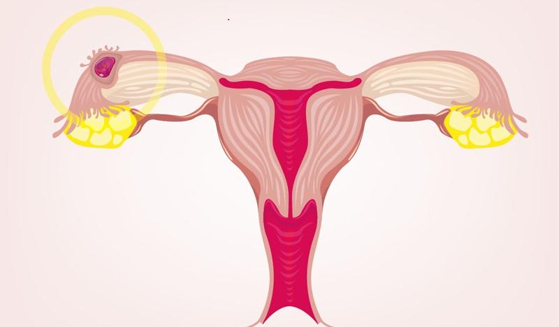 Schmierblutung Schwangerschaft: Wucherungen können überall am Körper und somit auch in der Gebärmutter an der Uteruswand auftreten. (#02)
